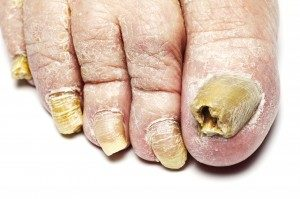 Simple and safe ways to cure ugly toenails | Arch City Foot & Ankle